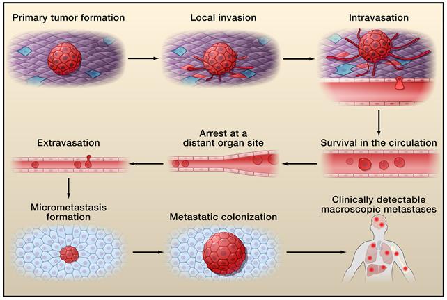 The invasion–metastasis cascade.